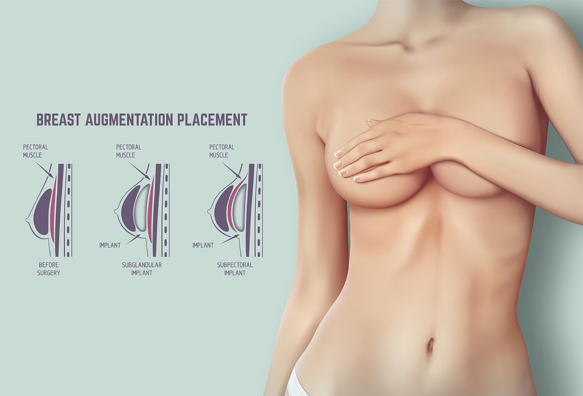 Name:  Recreating-the-Physical-Structure-of-Breasts-with-Breast-Augmentation-Surgery-in-Delhi.jpg Views: 14 Size:  53.9 KB